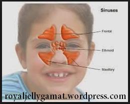 sinusitis anak 1